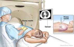 ct guided biopsy cost in mumbai