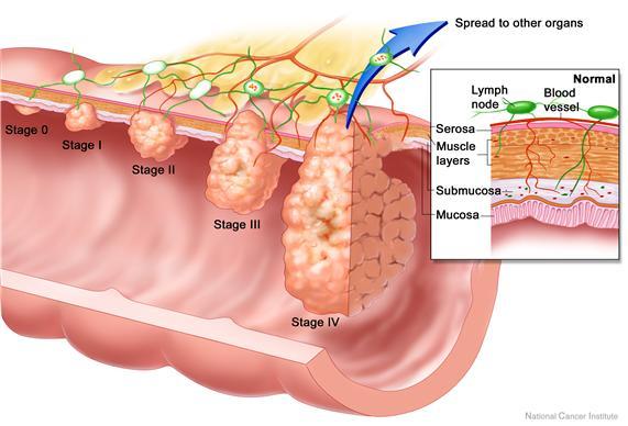 What Is Colon Cancer Treatment Of Colon Cancer Symptoms Of Colon Cancer Hemonc101